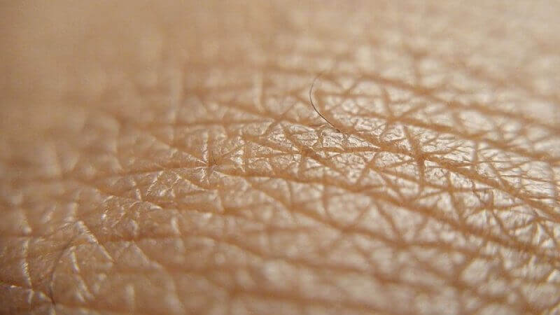 A high-resolution image showing fine detailing of top layer of skin cells.